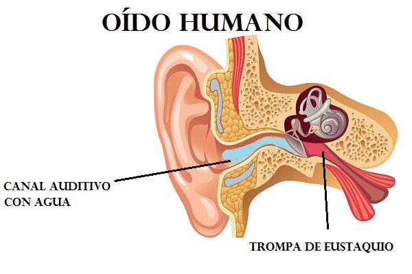oído-gráfico